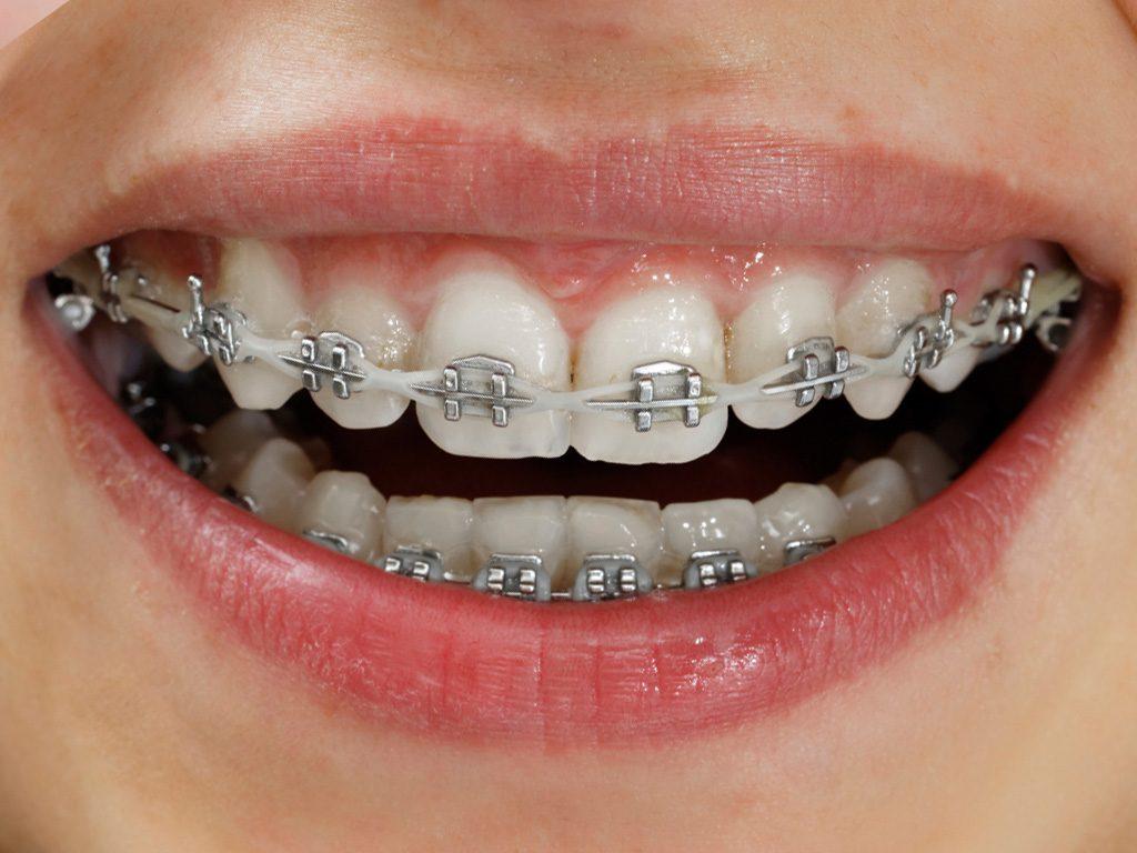 Niềng răng 3 tháng sau sẽ như thế nào? Nieng-rang-loai-nao-tot-01-1024x768