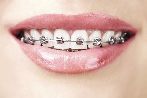 Tại sao cần phải chỉnh nha niềng răng? Cac-loai-mac-cai-nieng-rang-1