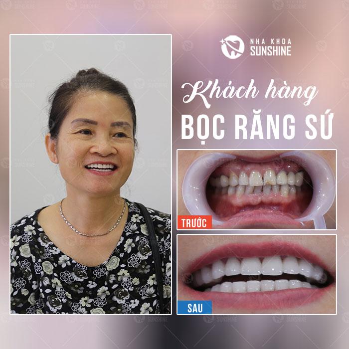 bọc răng sứ nano bao nhiêu tiền - Giá mới cực ưu đãi 3
