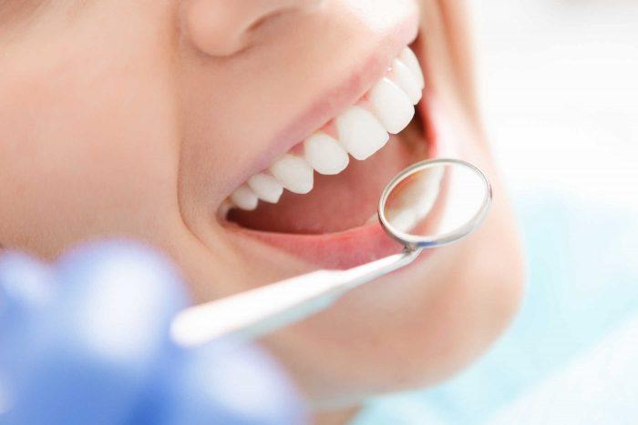 tẩy trắng răng không ê buốt - Bảng giá mới nhất Trong-rang-gia-bao-nhieu-3