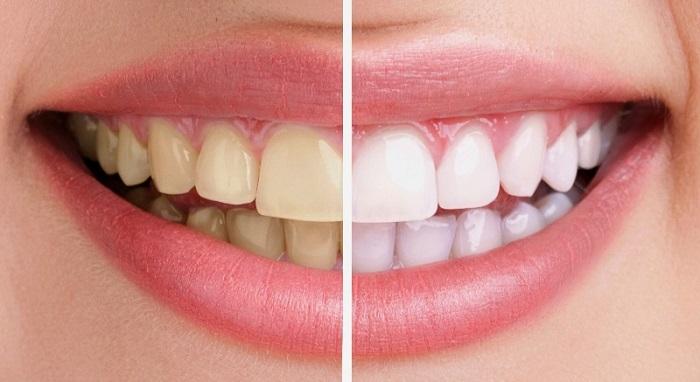 tẩy trắng răng không ê buốt - Bảng giá mới nhất Trong-rang-gia-bao-nhieu-4