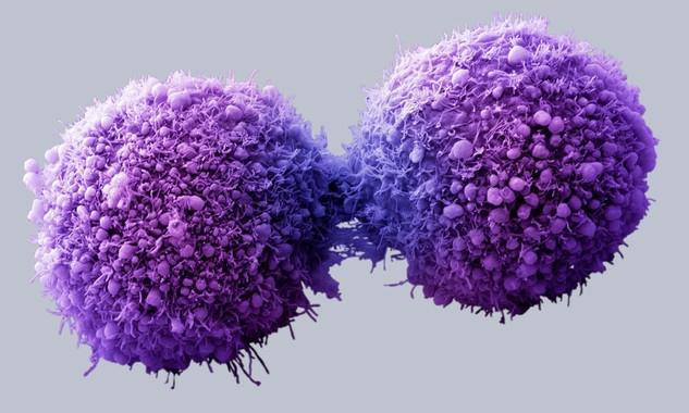 Lucha contra el cáncer - Página 8 Img_40021