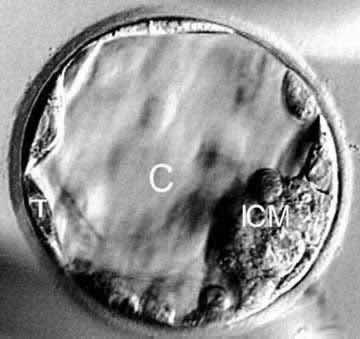 Kvalitet embriona - Page 3 1e2w0k