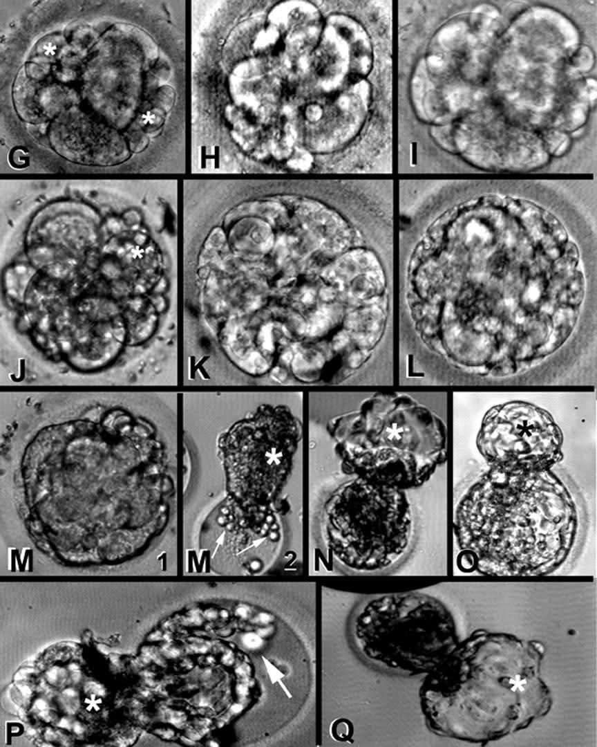 Kvalitet embriona - Page 3 11mgdur