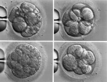 Kvalitet embriona 2r4l8x2