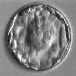 Kvalitet embriona - Page 3 34oyqtu