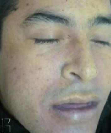 Heriberto Lazcano Lazcano alias El Lazca ¿Fue abatido o se suicidó?. EXAMEN MÉDICO FORENSE.. 34zhniv