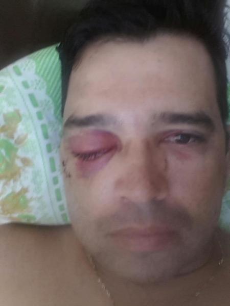 Acidente horrível com amigo atirador dia 02-12-12 Mr8s92