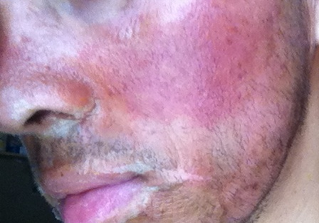Isotretinoina+Peeling TCA aun mas fotos Fdcdb4