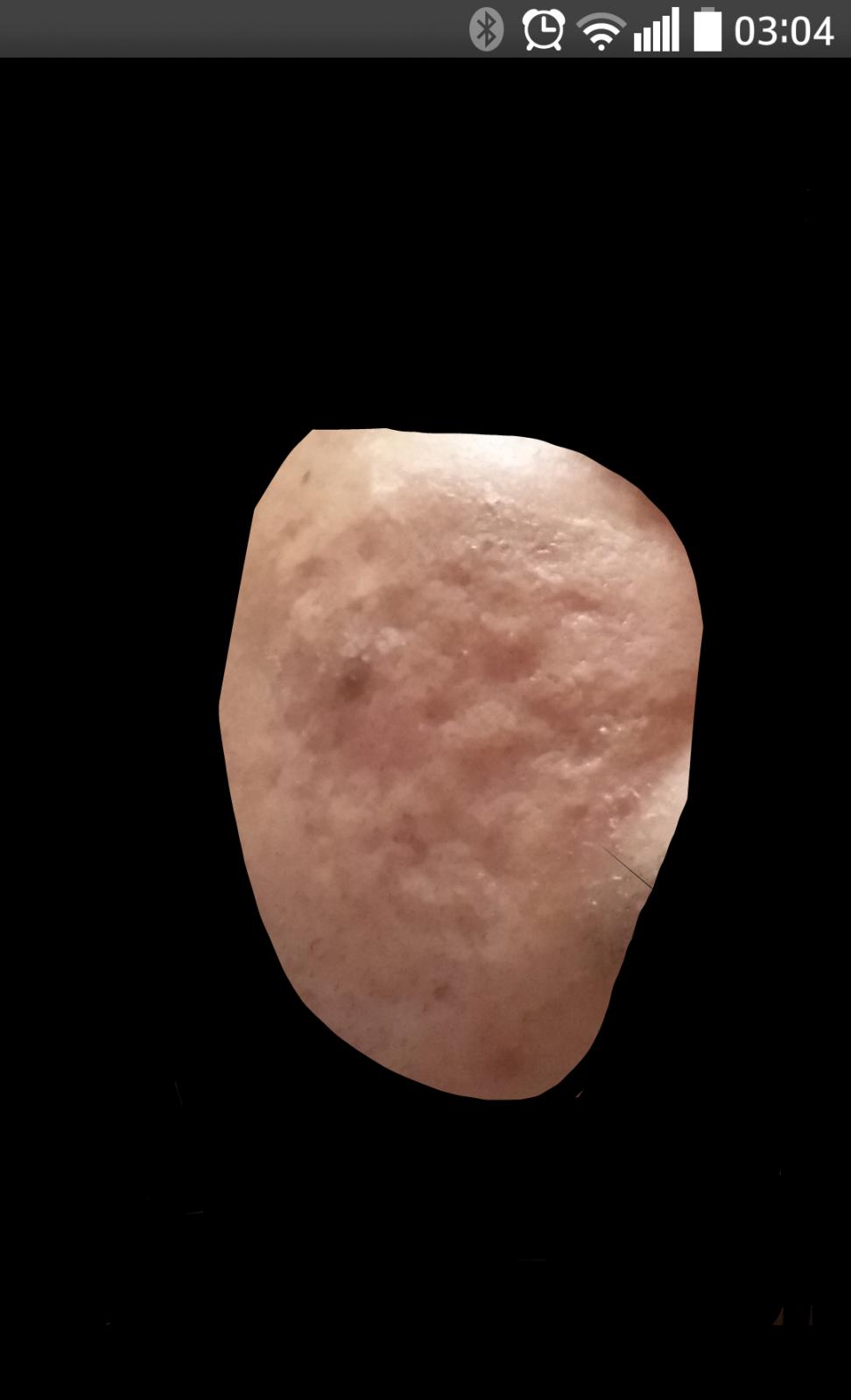 Rexomendacion de cicatrices Iyn69w