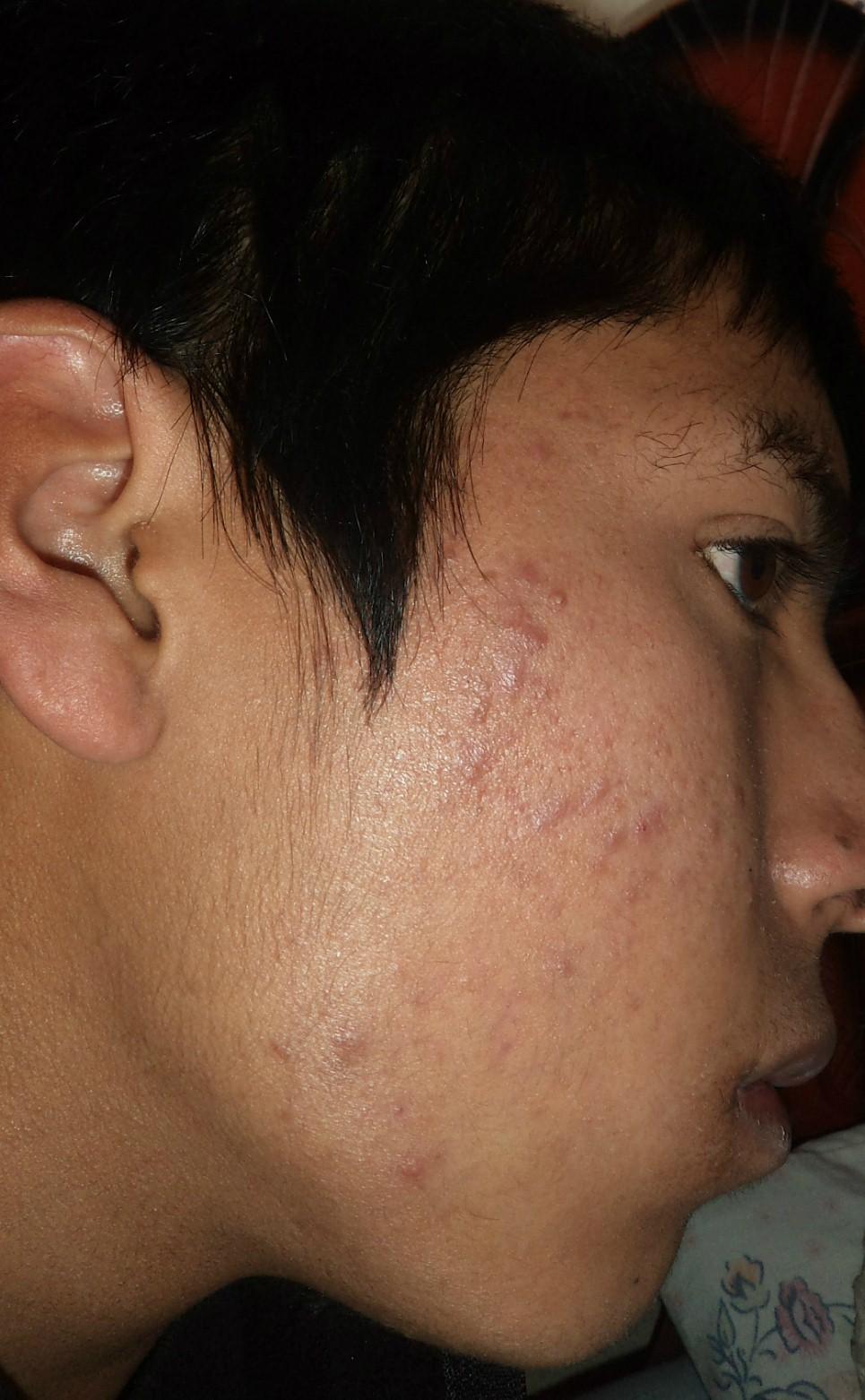 Tratamiento con Acnotin 20mg/dìa Zogbuw