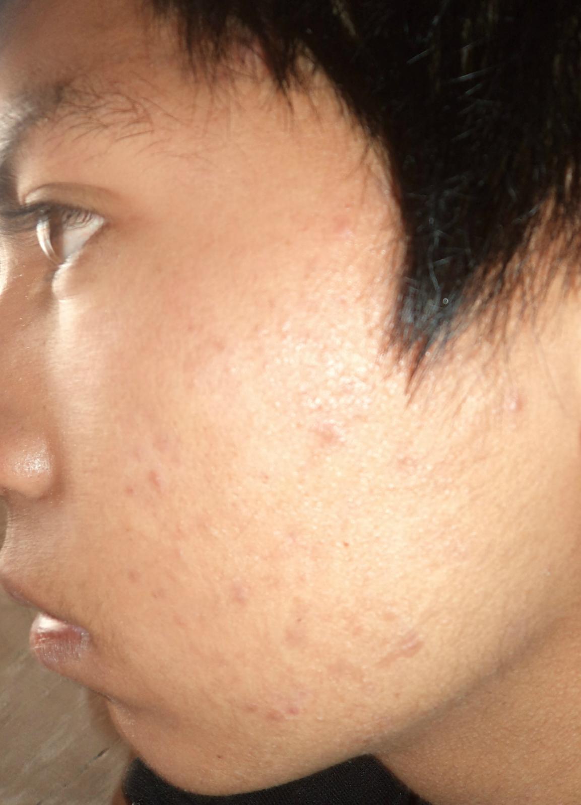 Tratamiento con Acnotin 20mg/dìa 2r61820