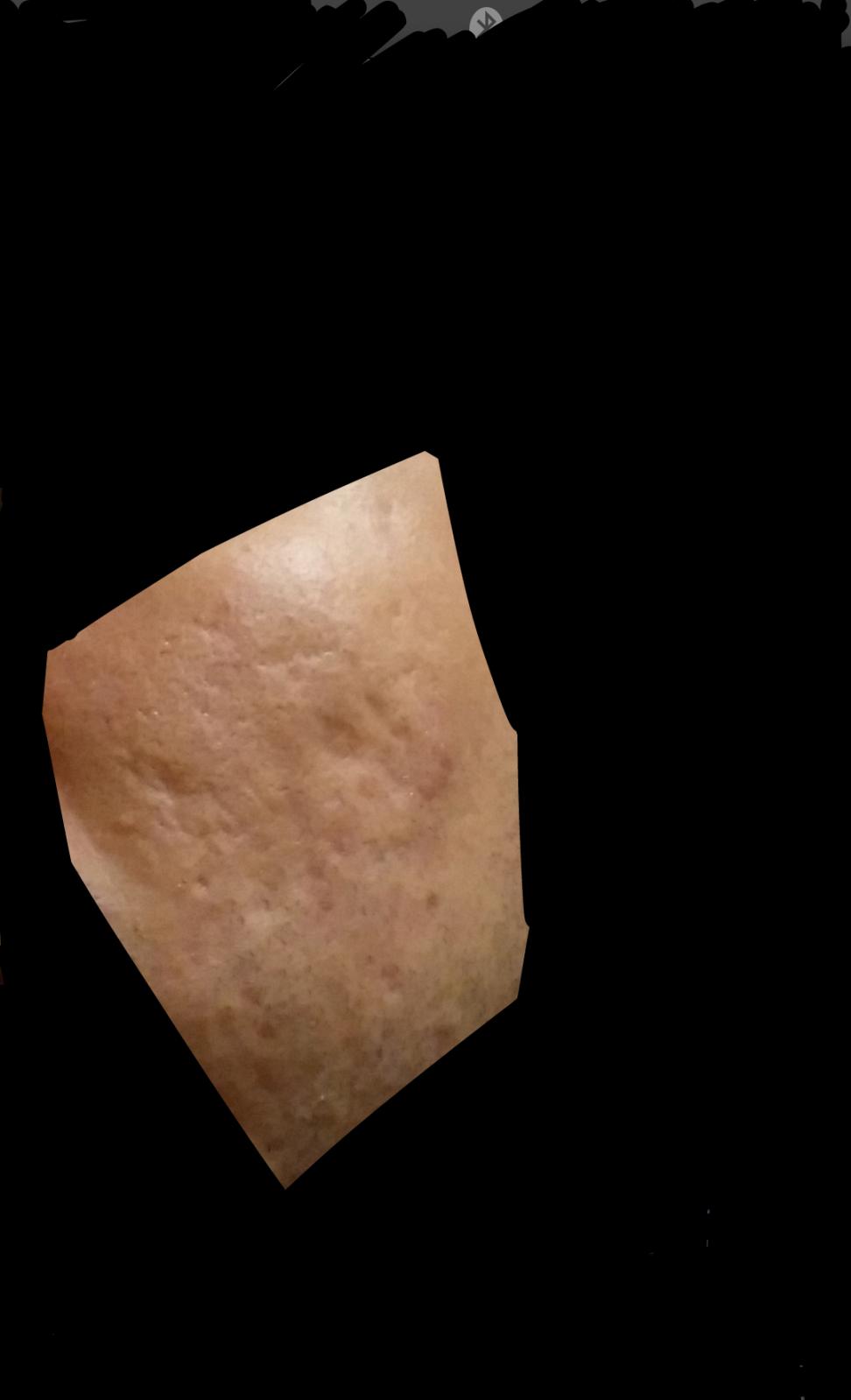 Rexomendacion de cicatrices 2ym83v9