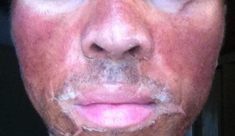 Isotretinoina+Peeling TCA aun mas fotos 11jnjbr