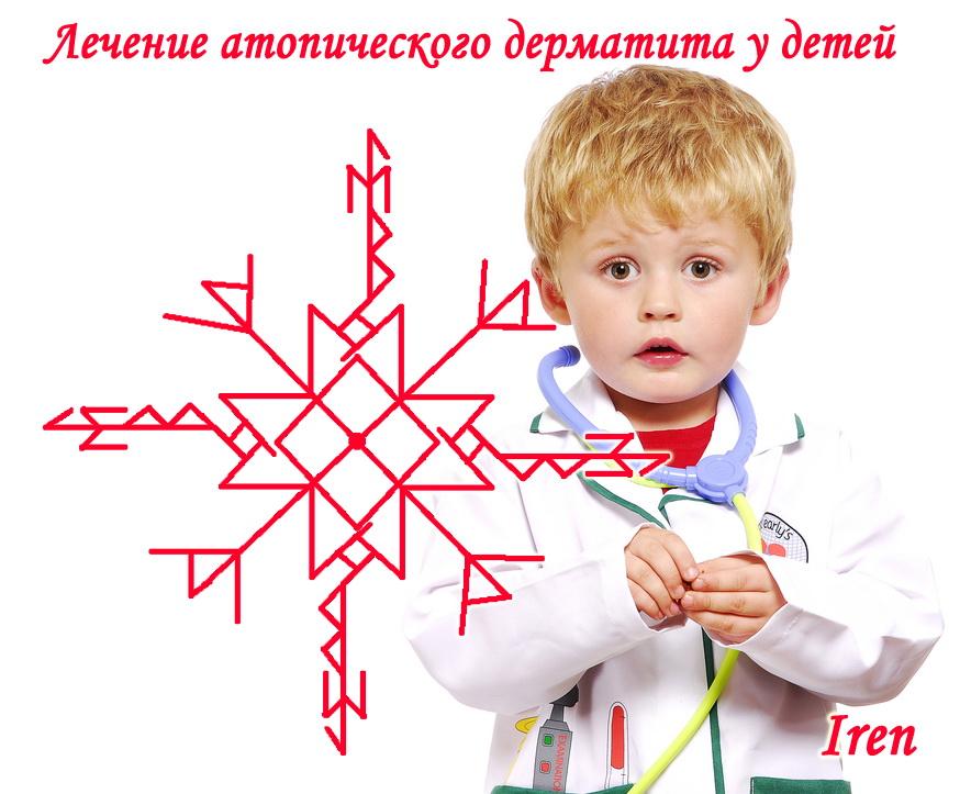 """""""Став для лечения атопического дерматита у детей"""" Автор: Iren 15wf6e0"""
