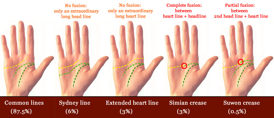 Simian lines Common-hand-lines-uncommon
