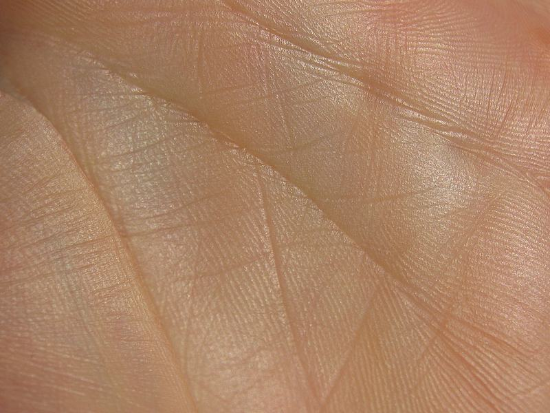 History of Scientific Dermatoglyphics Palmar-lines