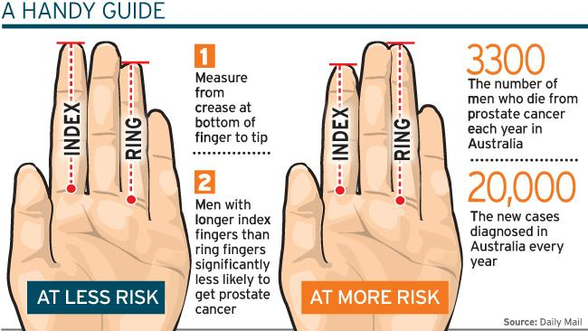 Multi-Perspective Palm Reading: the BLOG! Digit-ratio-finger-length-prostate-cancer