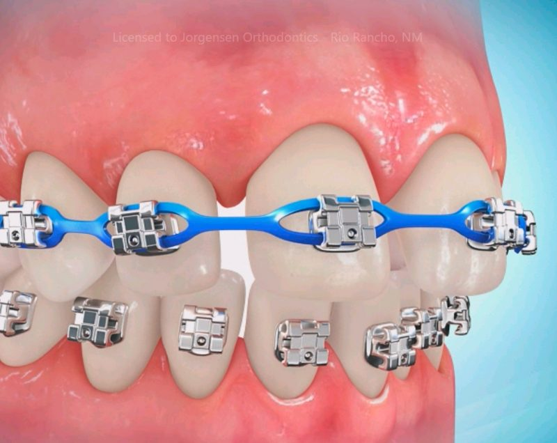 Sau khi niềng răng ăn cháo bao lâu  Nha-khoa-nieng-rang-tot-800x636