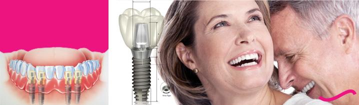 Tìm hiểu kĩ thuật cấy ghép răng Implant Cay-ghep-rang-implant-la-gi