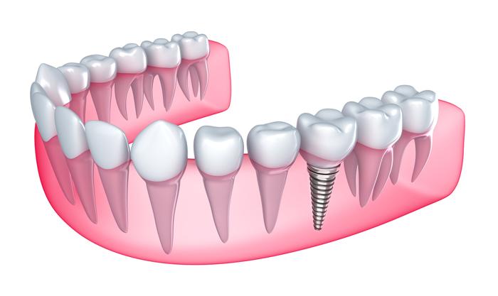 Tìm hiểu kĩ thuật cấy ghép răng Implant H1