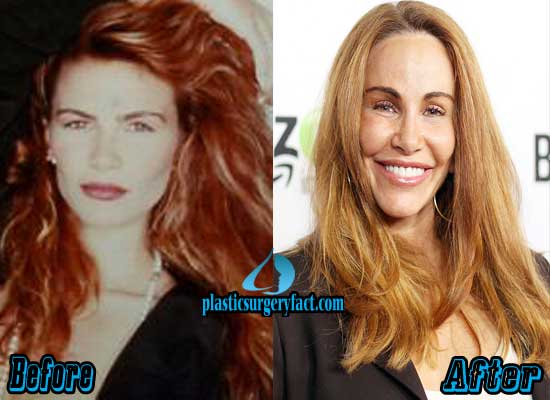 Here I Go Again ¿1982 ó 1987? Tawny-Kitaen-Before-and-After-Plastic-Surgery