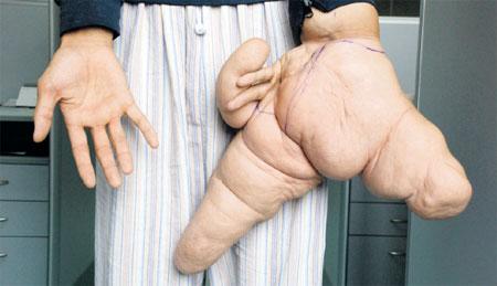 صورة اضخم كف يد في العالم ووزنها 10 كيلوغرام 95b935527d