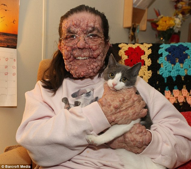 pauvre femme...quelle horrible maladie 1412089099904_Image_galleryImage__EXCLUSIVE_PLEASE_NOTE_CO
