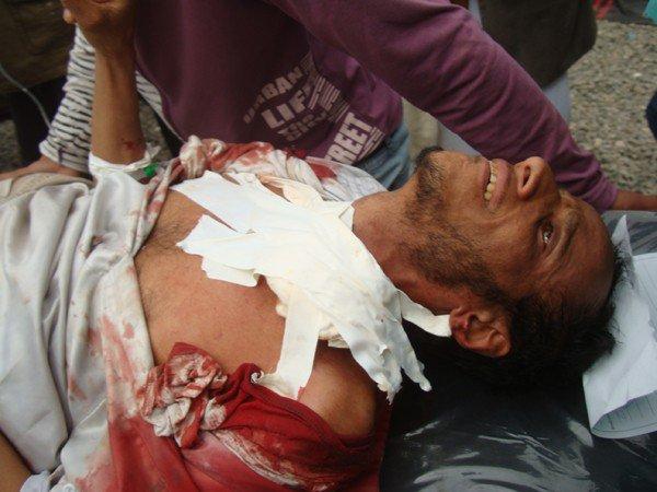 الى من لدية ضمير في اليمن ... هناك مأساة حقيقه في جامعه صنعاء .. والاعلام يضللكم ... اتقوا الله Killleds-18-marsh-4