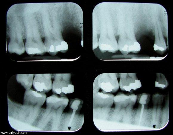أشعة x السينية و صحة الأسنان!! 783763936173