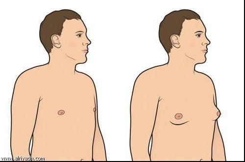 ظاهرة التثدي عند الرجال  682257867417