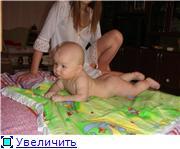 диатез у детей - Страница 2 66770f14a2f6t