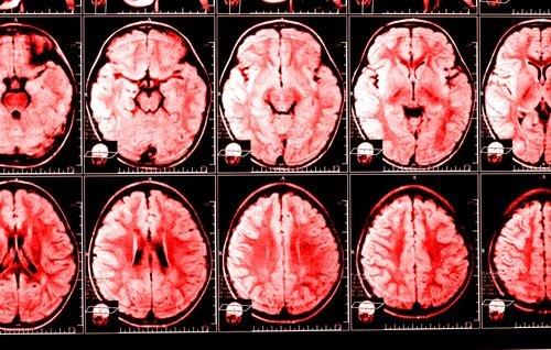 Синдром Хронической Усталости как Миалгический Энцефаломиелит - Страница 2 94c6d4cba7e9
