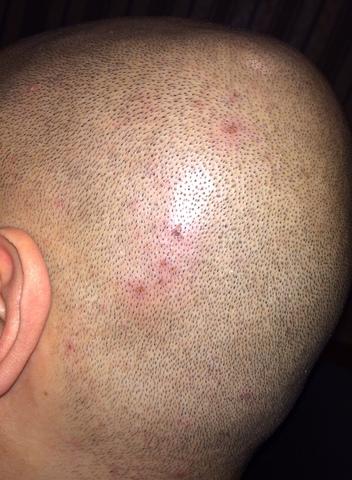 1er rasage crânien (bis) Photo_1