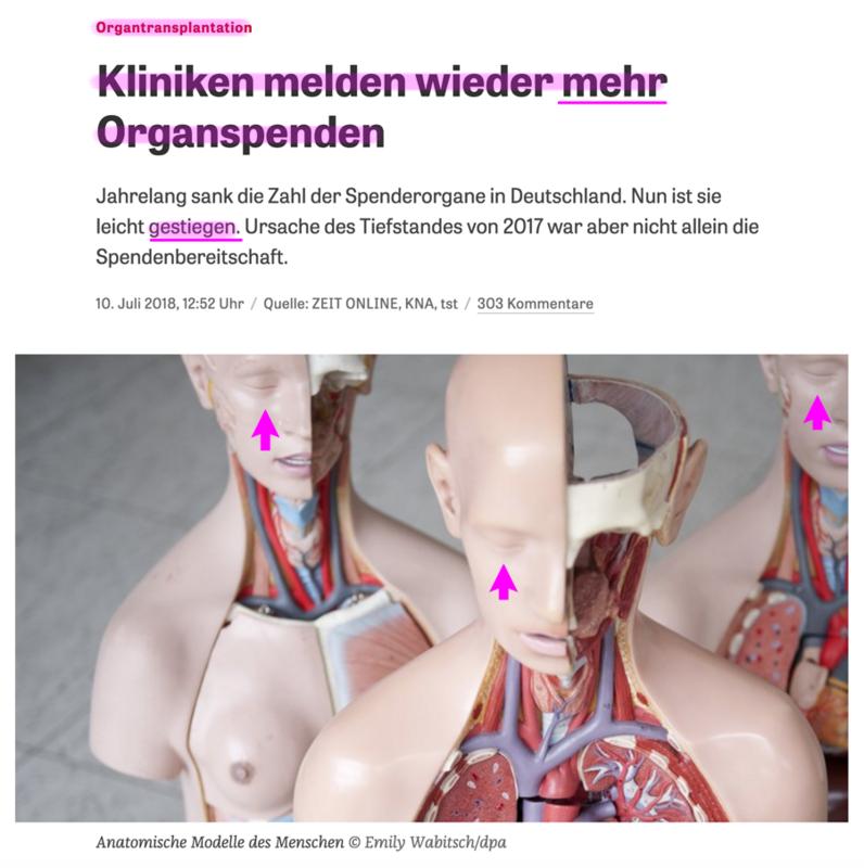 Organspende / Transplantation Bildschirmfoto_2018-07-22_um_17.28.23