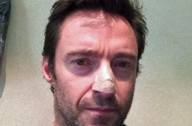 The Wolverine (2013) Jackman