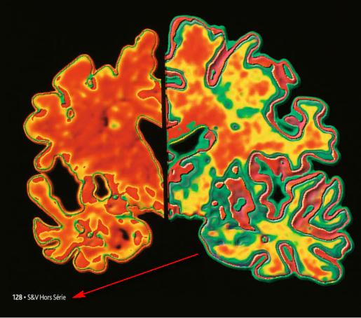 Religion et Maladie d'Alzheimer Religion_alzheimer2