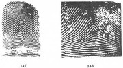 X - WALT DISNEY - One of his fingerprints shows an unusual characteristic! - Page 5 Fig147_148