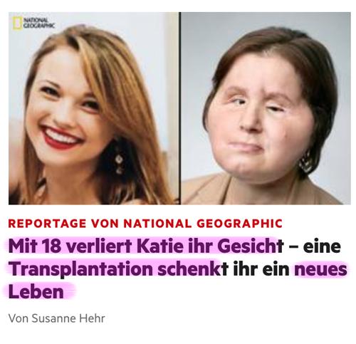 Organspende / Transplantation Transplant_01