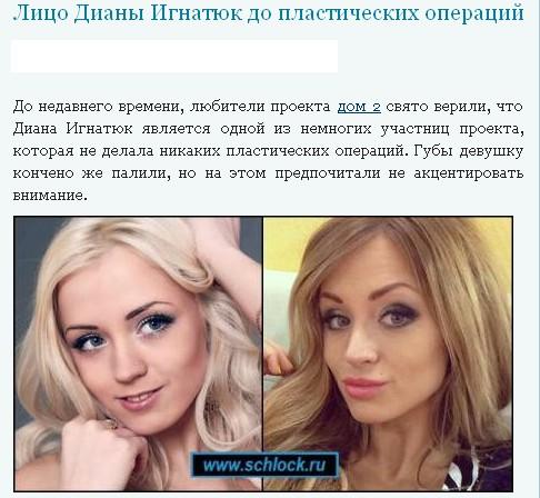Диана Игнатюк (Милонкова)  3T96e