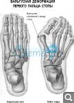 Могильная кость или вальгусная деформация стопы: причины и меры профилактики 13bf2bcdcf71680dbdfb069a840bde90