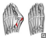 Могильная кость или вальгусная деформация стопы: причины и меры профилактики 865e5f8a166994f5dcb9c781d4f7fe3a