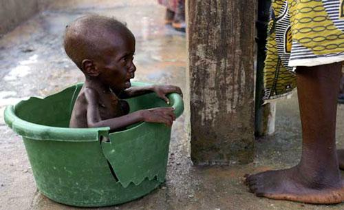 مجاعة الاطفال فيالعالم Image014
