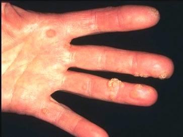 الامراض المعدية ViralWarts11