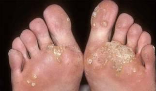 الامراض المعدية ViralWarts12
