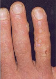 الامراض المعدية ViralWarts17