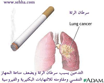 أمراض الجهاز التنفسي Respiratory tract Pnrf