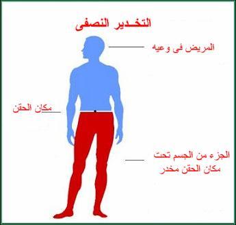 مخاطر وسلبيات التخذير النصفي أو البنج النصفي SC-Anesth4
