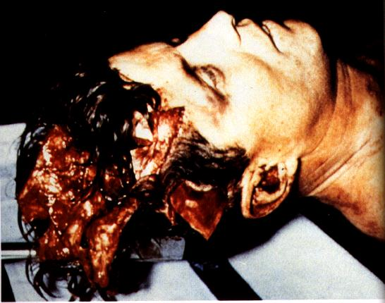 To Certain People... JFK-autopsy