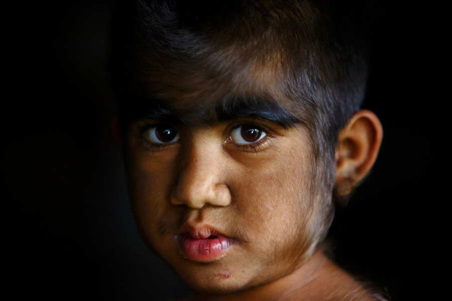 ФОТО - Page 3 Surprising-photos-hair-child